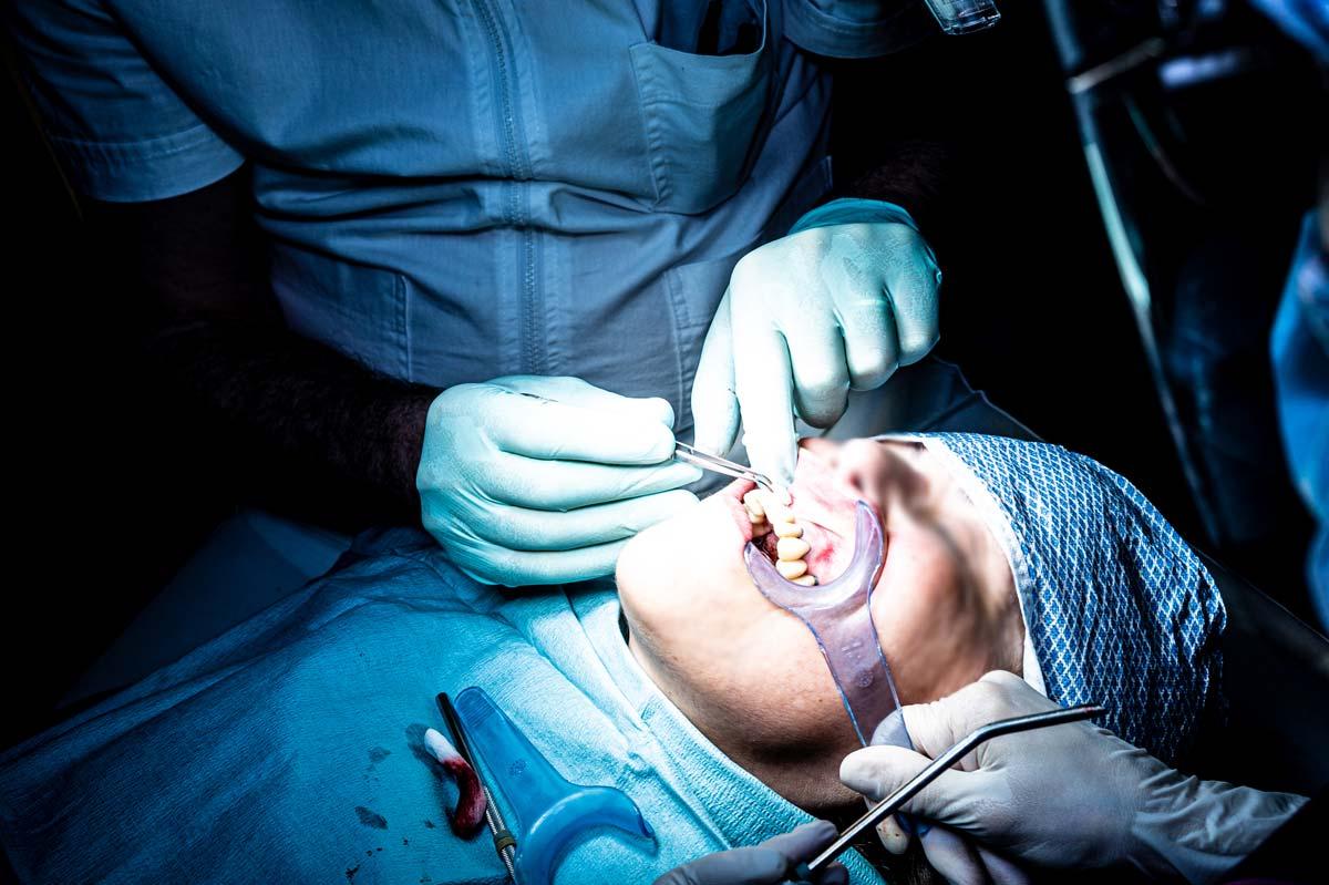 silvestri-piacentini-corsi-formazione-in-chirurgia-parodontale-implantare-dentisti-40