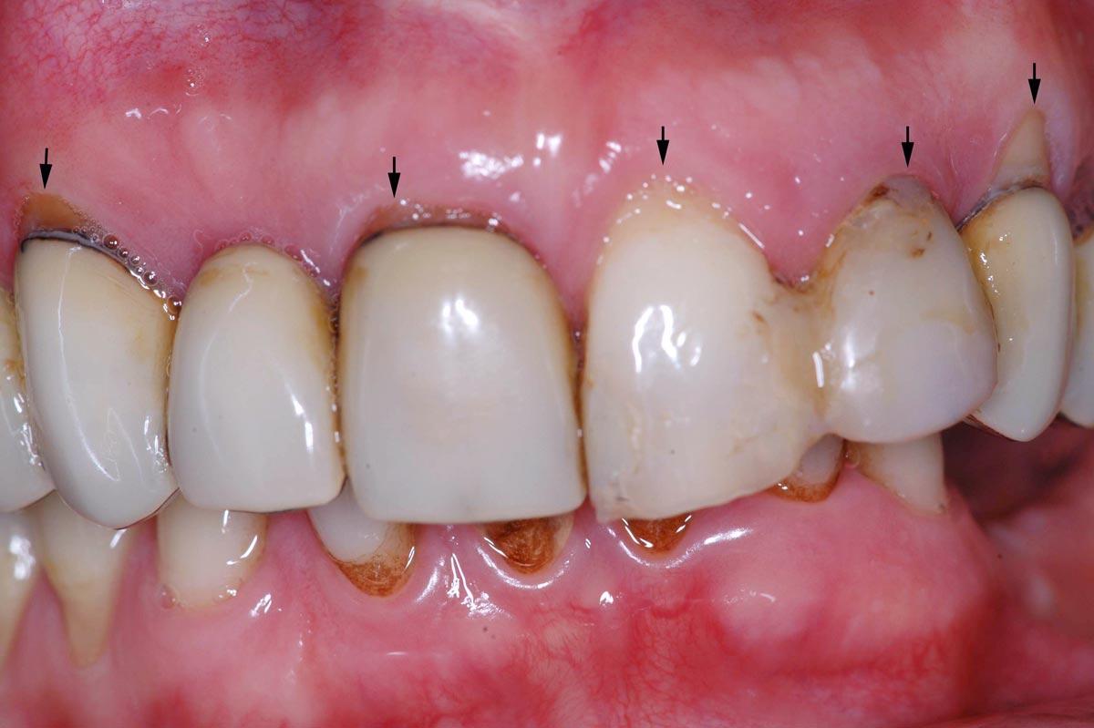 silvestri-piacentini-corsi-formazione-in-chirurgia-parodontale-implantare-dentisti-42